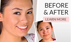 Before and After - Learn More